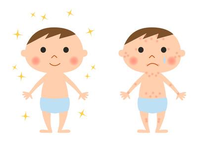 Come riconoscere e curare orticaria bambini